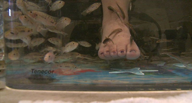 Fish eating bacteria of a foot.