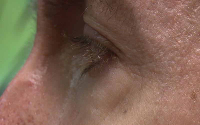 EyeTech eye