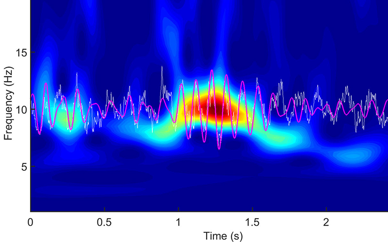 Acoustoelectric Brain Imaging will allow researchers to measure electrical activity in the brain, such as the brain waves that occur during sleep cycles. (Photo courtesy of the University of Arizona)
